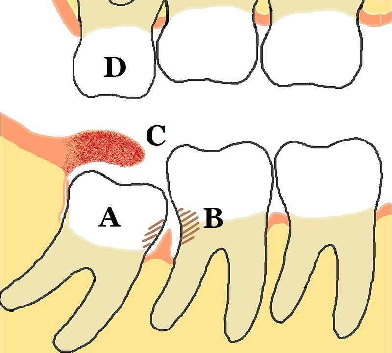Did you have all 4 of your wisdom teeth? – Rhesus Negative
